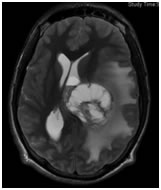 "A Glioma causing pressure effects and ""oedema"" - Dr Jonathan Curtis MBBS, FRACS, Neurosurgeon"