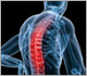 Spine Conditions - Dr Jonathan Curtis MBBS, FRACS, Neurosurgeon
